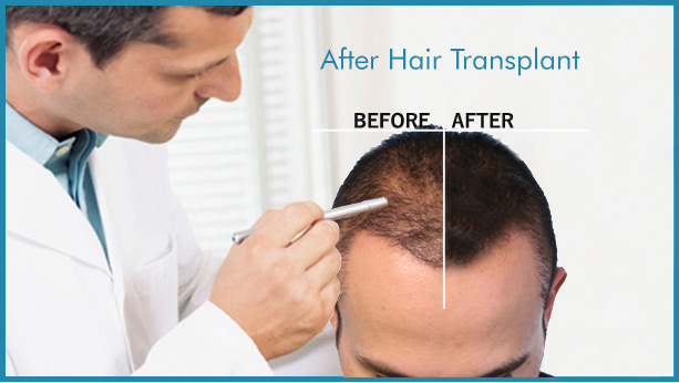 After hair transplant, HairCubed The only product on the market that thickens your actual hair. Waterproof!