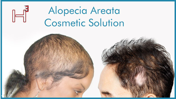 Alopecia areata Solution HairCubed The only product on the market that thickens your actual hair. Waterproof!