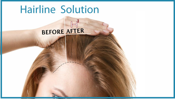 Hairline Solution HairCubed The only product on the market that thickens your actual hair. Waterproof!