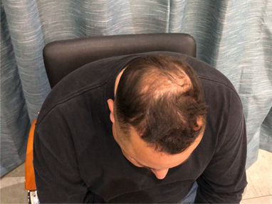 Before HairCubed - thinning hair solution, fine hair solution bald spots solution
